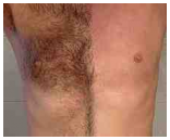 Waxing vs. Laser Treatment for Hairloss